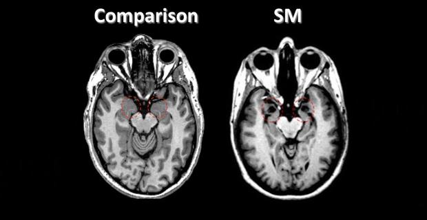 SM Amygdala MRI